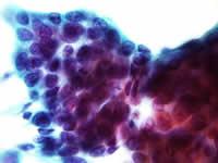非角化型扁平上皮癌