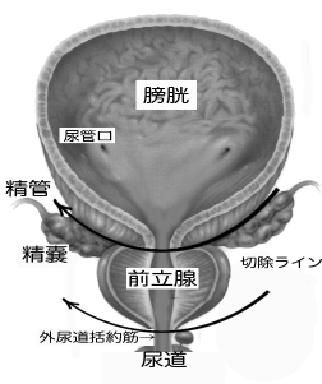限局性前立腺がんのリスク分類