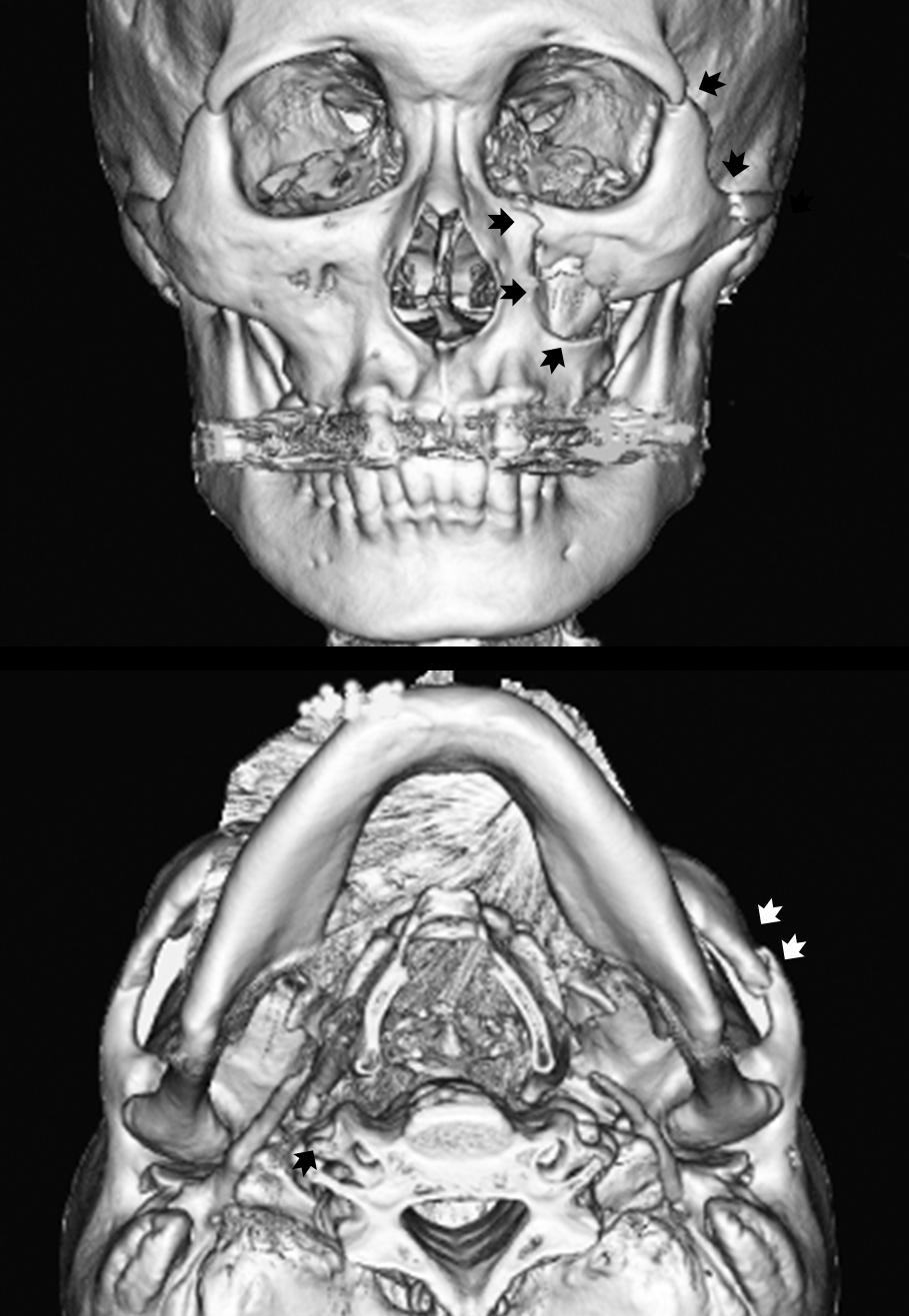 術前CT写真