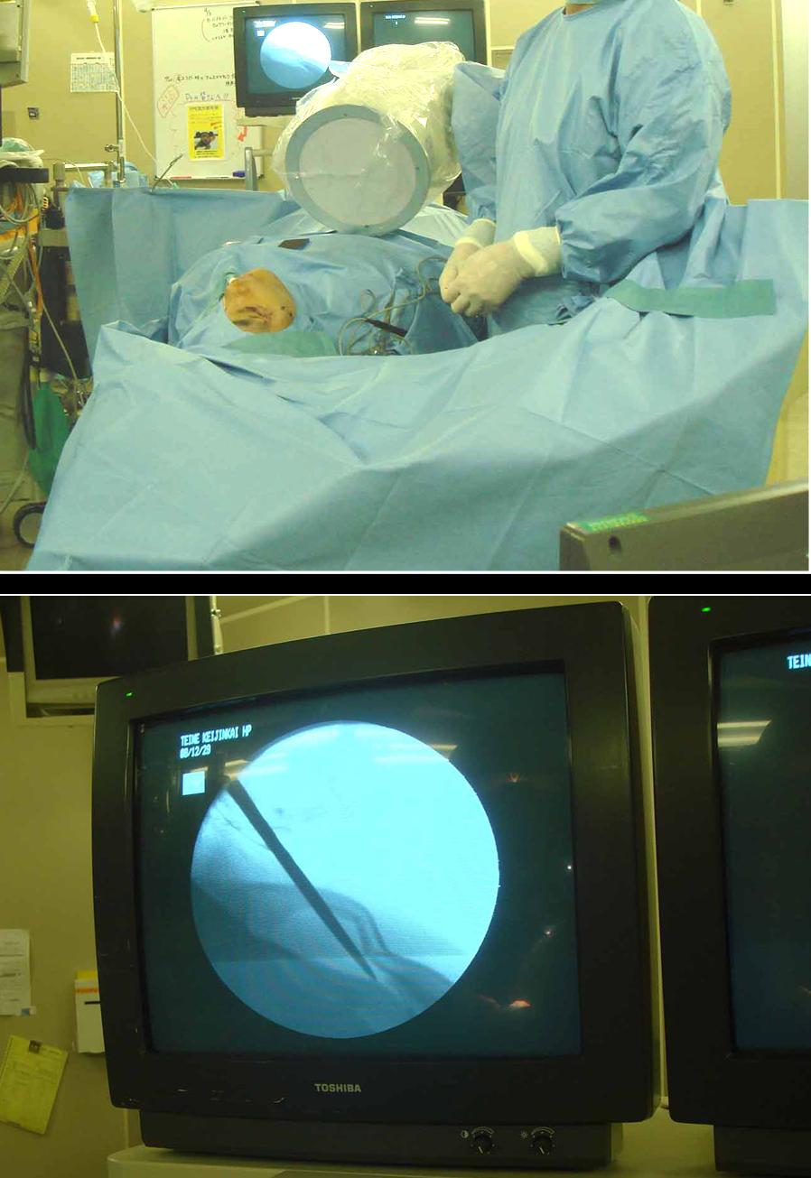 C-ArmX線透視下による整復術