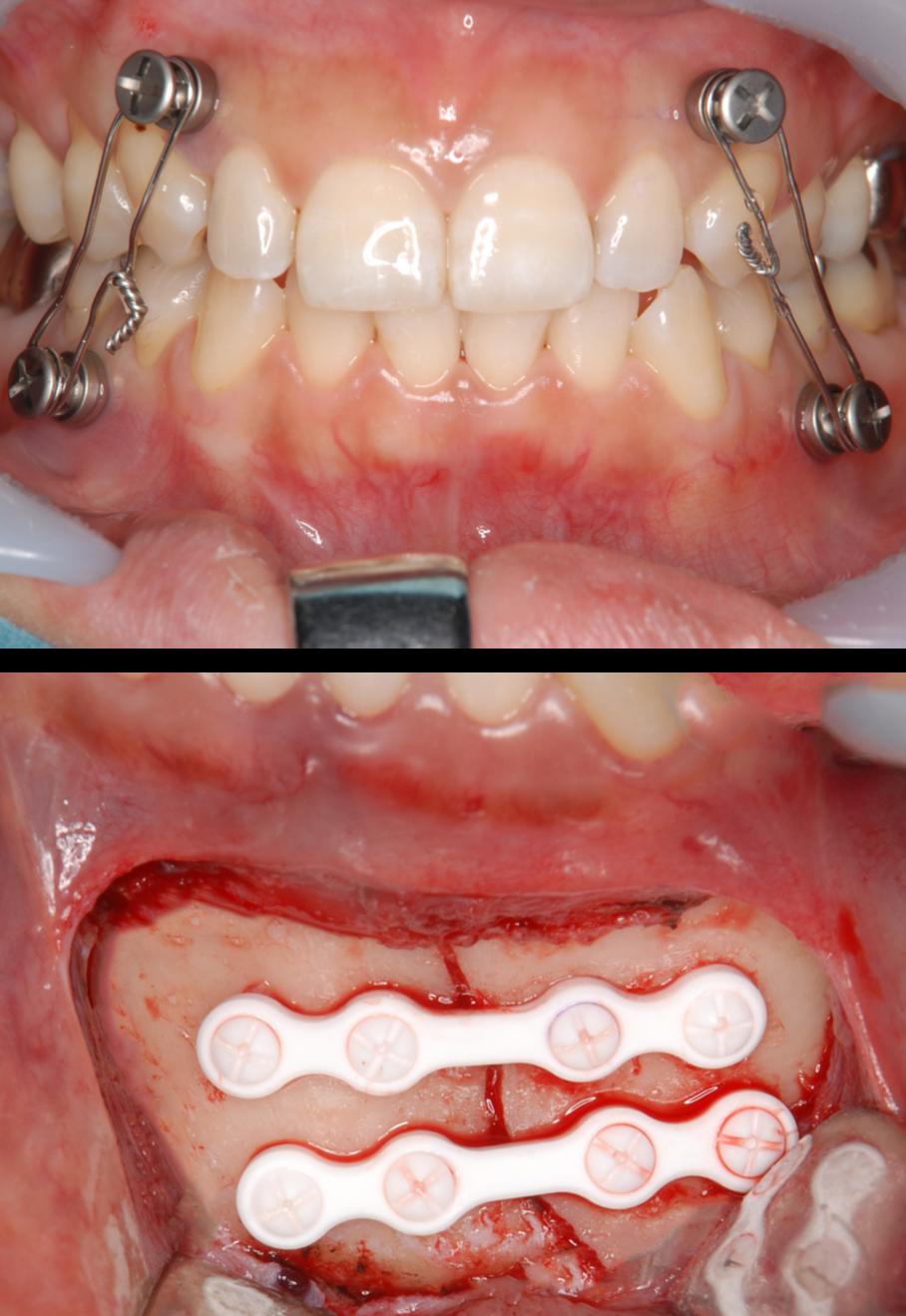 下顎骨骨折5