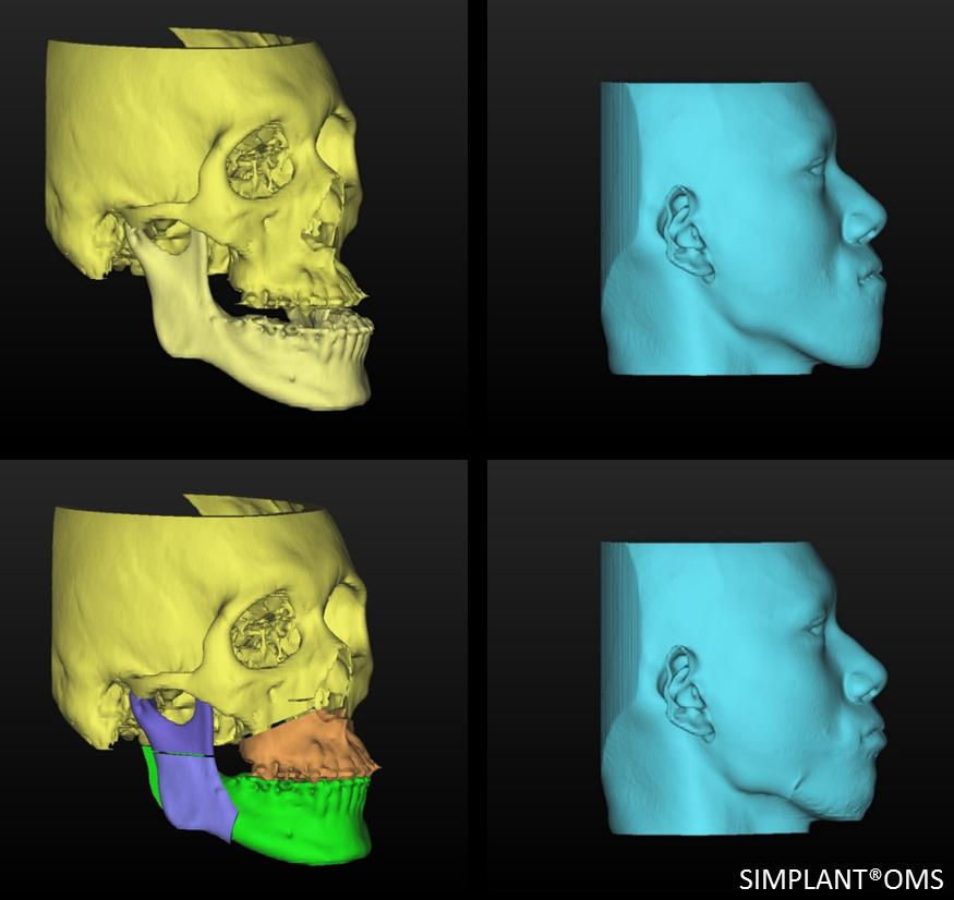 顎変形症7