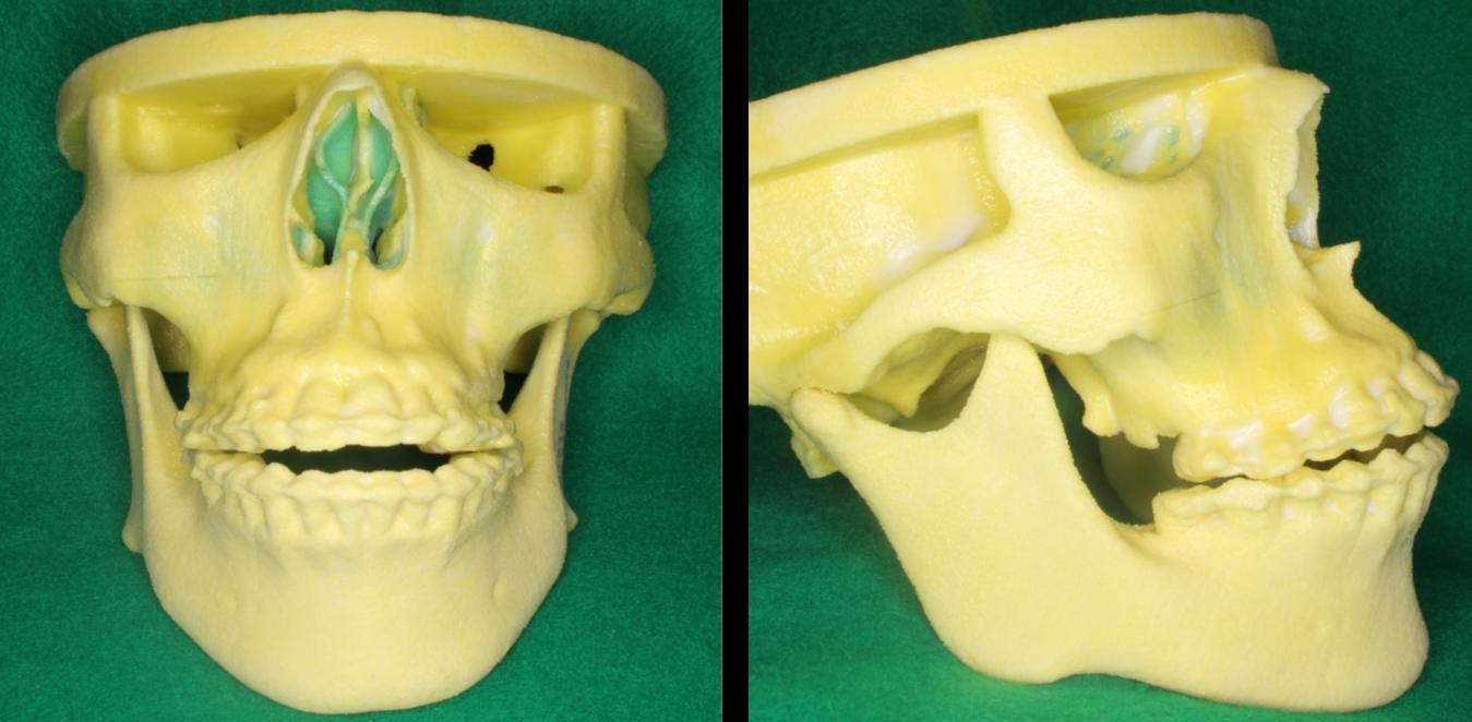 顎変形症8