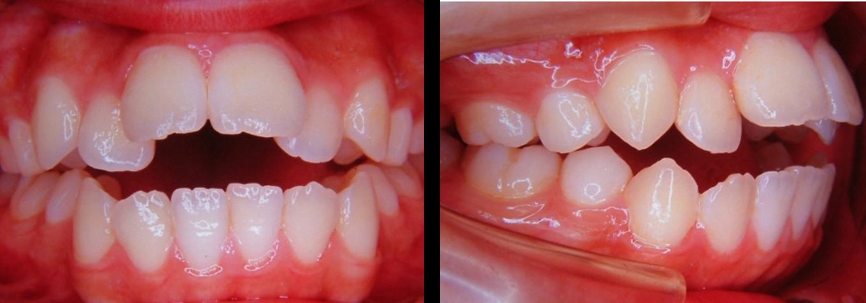下顎後退症1