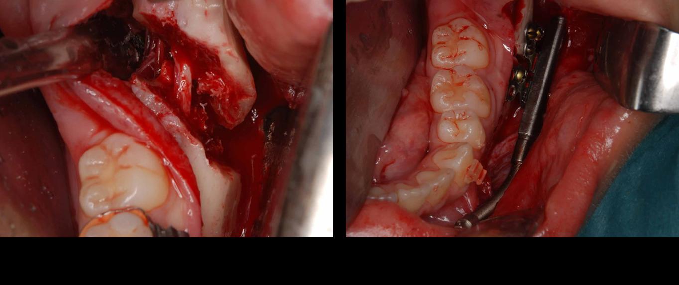 下顎後退症2
