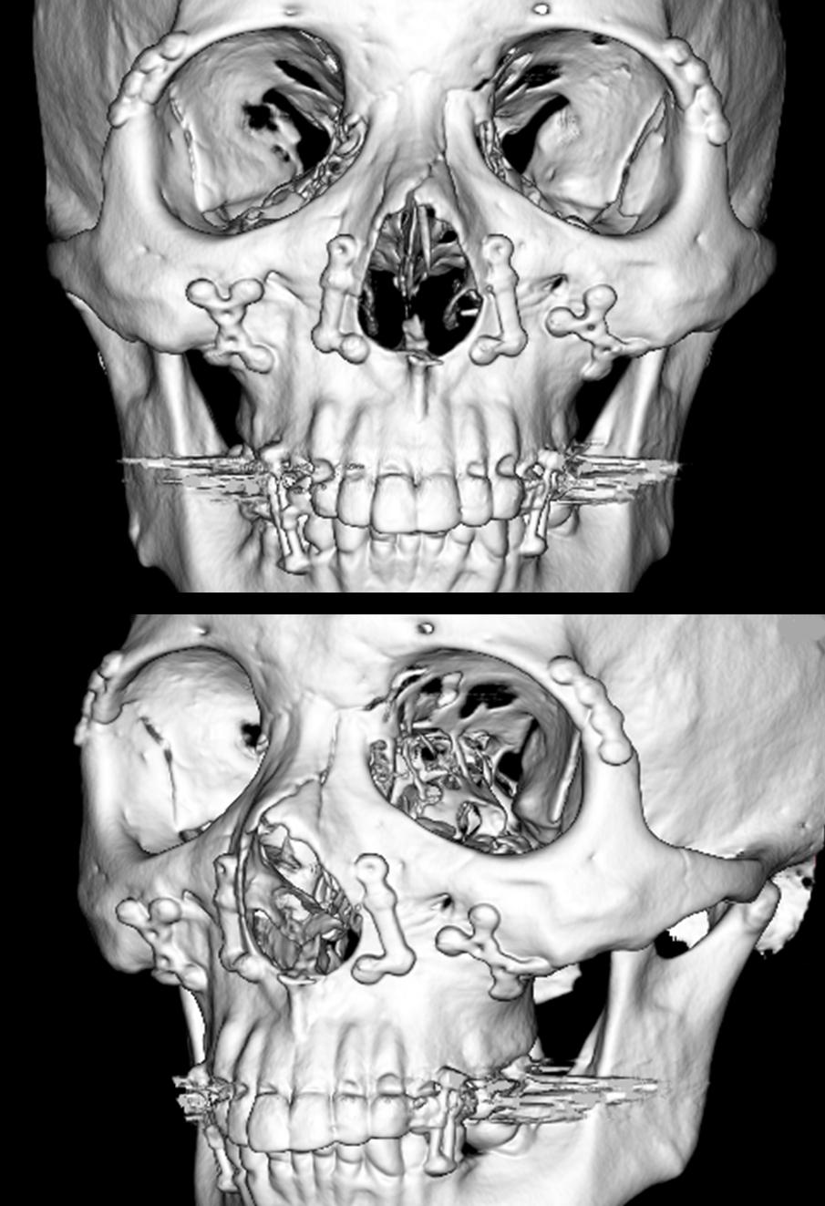 術後CT写真