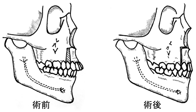 顎変形症4
