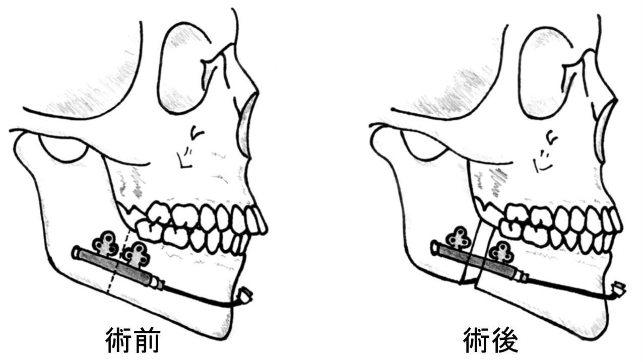顎変形症5