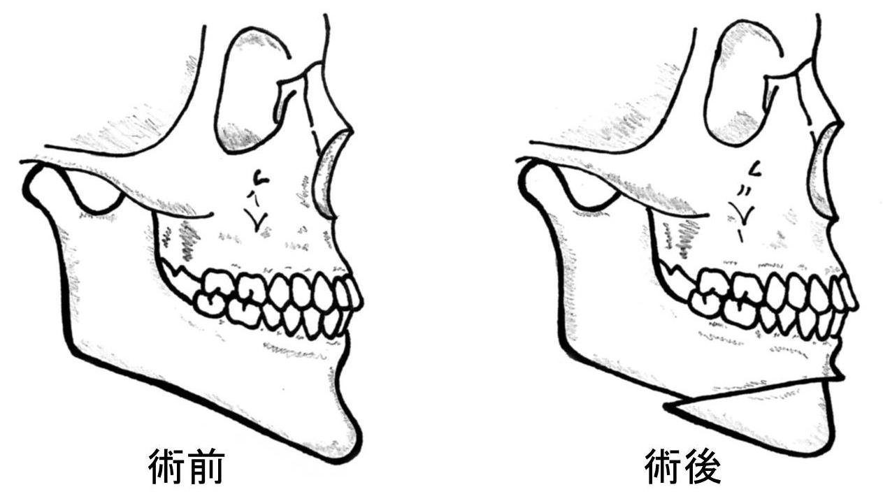 顎変形症6
