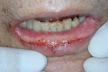 化学療法による口唇粘膜炎