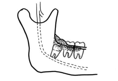 歯肉(歯ぐき)に炎症を起こす